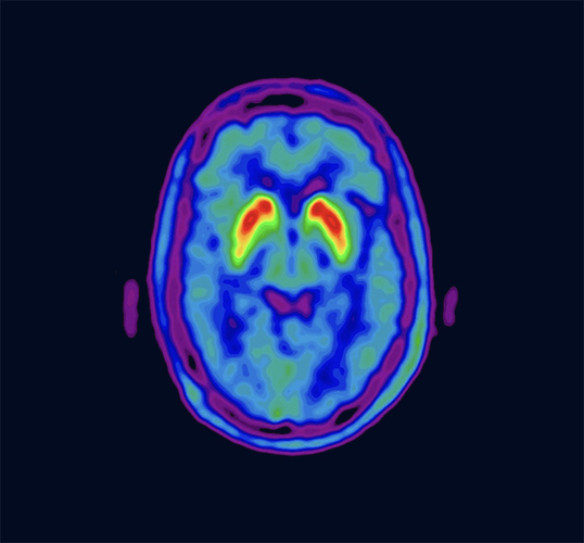 Nucleis Brain analysys scan