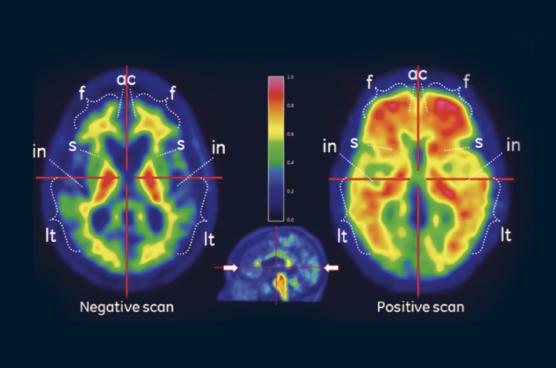 PET imaging of the brain